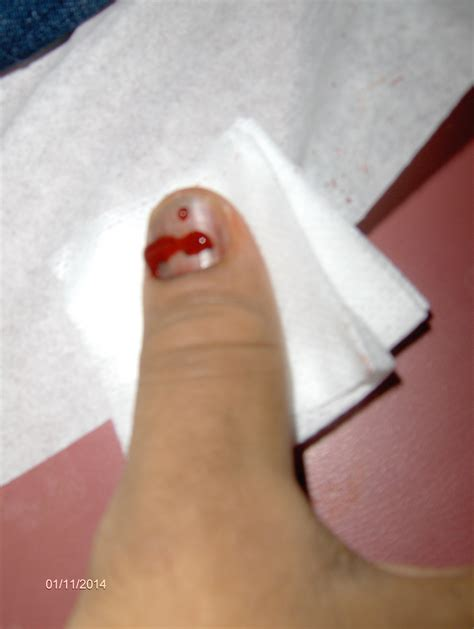 toenail bleeding bleeding nail subungual hematoma walk in clinic orlando urgent care walk in