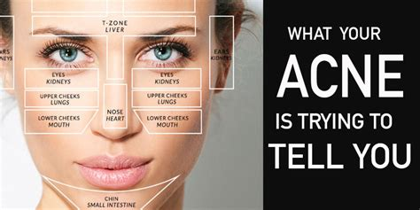 mapping acne mapping what is your acne telling you easy hacks