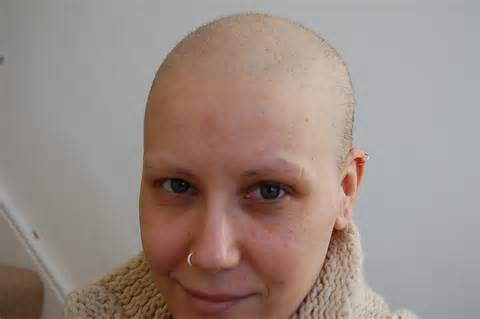rate of hair growth after chemo hair loss from chemotherapy