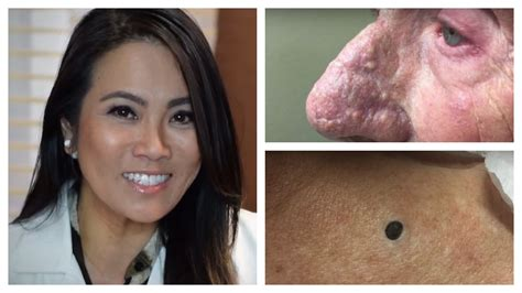 Dr Pimple by Here S Dr Pimple Popper S Top 3 Extraction You Re