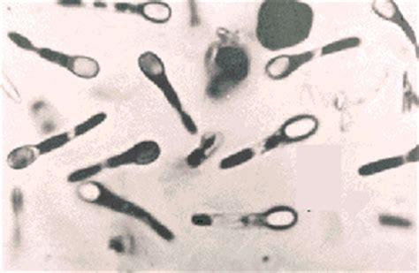 clostridium in dogs clostridium spores diffraction photos
