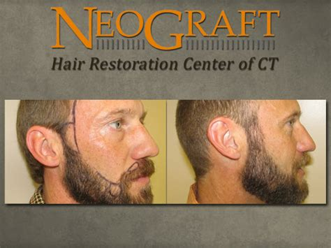 neograft in turkey facial hair transplant for beard and moustache fue hair