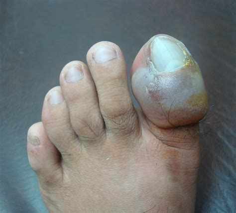 infected toenail bed pedicure risks ingrown toenail infection loss of nail