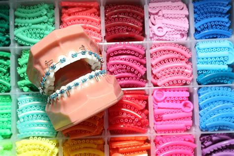 different color braces what color of braces should you wear shinagawa ph