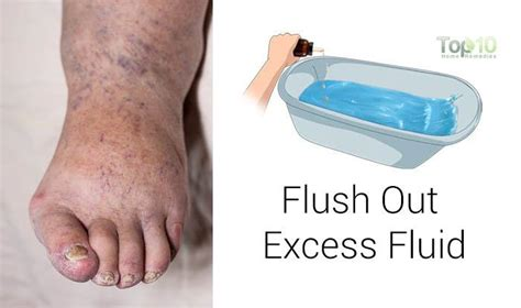 fluid retention after c section how to reduce water retention after pregnancy how to