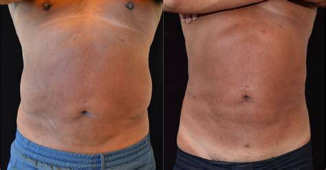 lipo after c section revision liposuction harder than you think buildmybod