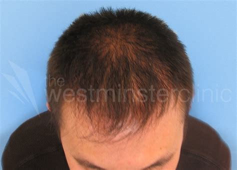 hair transplant china chinese hair transplant photos westminster clinic