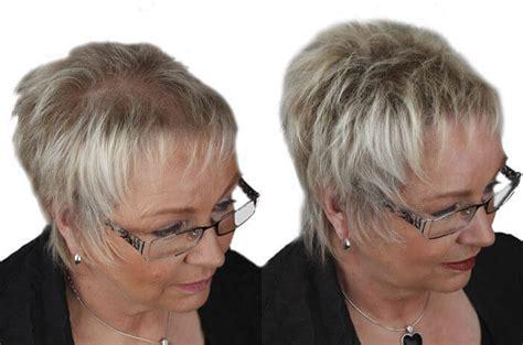 schuetthaar gegen haarausfall duennes haar und kahle