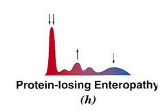 protein losing enteropathy i h blood plasma serum components flashcards quizlet