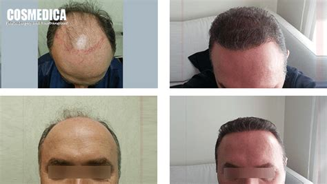 prescreened hair transplant physicians cosmedica hair transplant doctors hairsite com