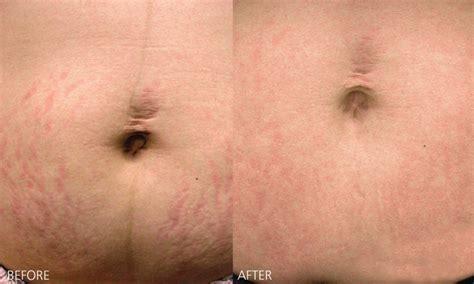 Bio Stretch Marks scars stretch marks doctor