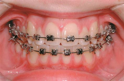 braces teeth treatments and dental health orthodontics living with my brace the