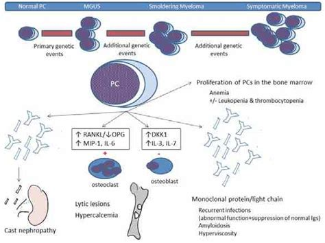 Myeloma Pathophysiology Diagram