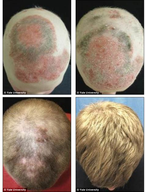 new treatment for alopecia 2014 treating alopecia universalis with xeljanz may have