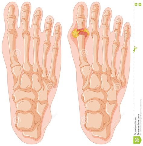 toe diagram gout illustrations vector stock images 159