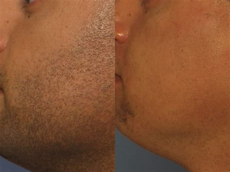 laser hair removal pictures laser hair removal for men by mario of miami fl laser