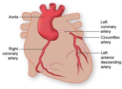 what color are arteries coronary artery disease can higher risks
