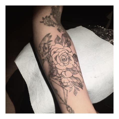 tattoo removal montreal image 14