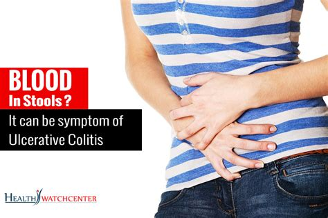 blood in stools may be a symptom of ulcerative colitis