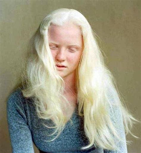 albino hair feel albinism a gift or a curse page 1