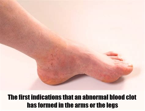symptoms of blood symptoms of blood clot in leg vein
