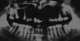 piombatura denti il problema