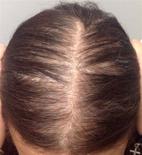 los angeles hair transplant newhairstylesformen2014 com women hair loss los angeles hairstyles for female pattern