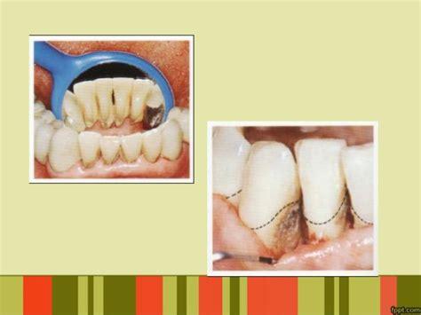 Pembersihan Karang Gigi Di Kimia Farma Ppt Penyuluhan Karang Gigi Karies