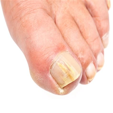 nail bed fungus common fungal problems academy foot and ankle
