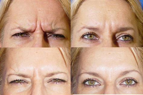 tattoo eyebrows exeter botox treatment plymouth and exeter devon by a qualified