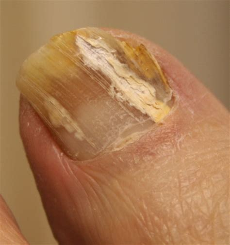 nail bed fungus fungal toenails chiropodist and podiatrist in tenterden kent
