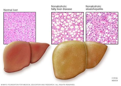 healthy fats disease nonalcoholic fatty liver disease symptoms and causes