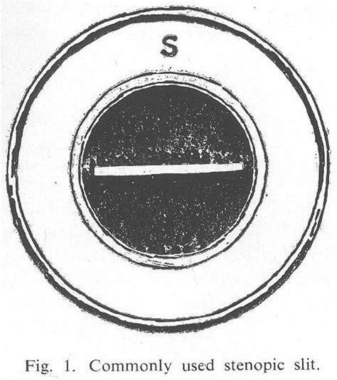 Optics Of Slit L by Image Gallery Stenopaic Slit
