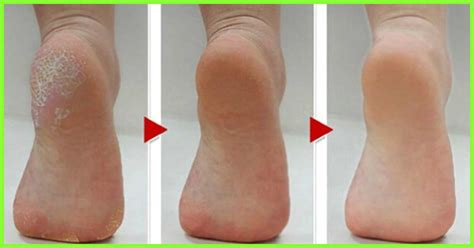 dry scaly ankles dry scaly ankles ankle rash healthgrades com femail