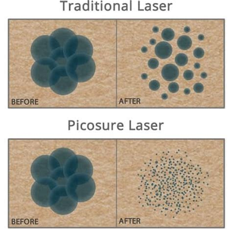 100 laser tattoo removal using picosure picosure