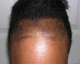 is hair recommended for someone with centrifrugal citrical alopecia hair loss brownskin net