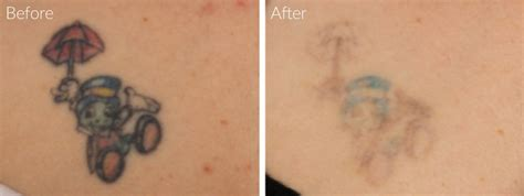 tattoo removal with salt 100 laser removal in farmington