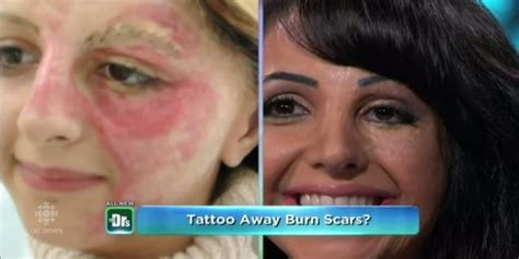 woman tattoos her own face to cover scars starts business