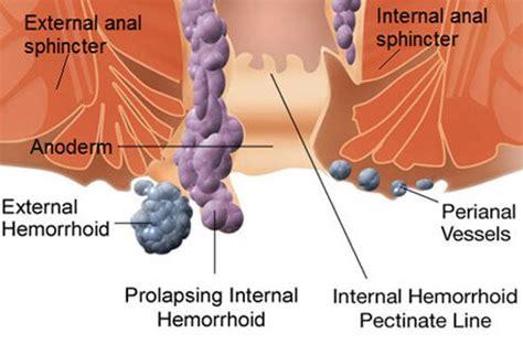 hemroids external pics for gt non thrombosed hemorrhoids