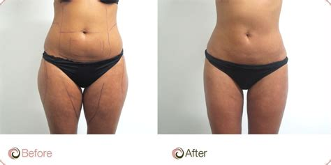 lipo light vs coolsculpting thighs liposuction thigh liposuction cost