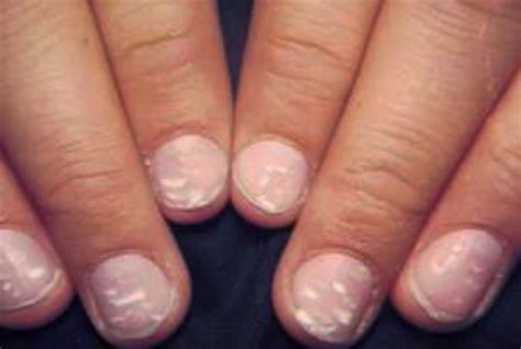 white spots on nail beds white spots on nails pictures causes treatment