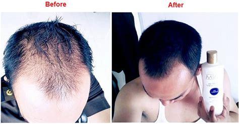 shoo nisim penumbuh rambut botak rontok