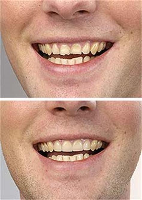 Zähne Polieren Beim Zahnarzt by Z 228 Hne Selber Schleifen Industriewerkzeuge Ausr 252 Stung