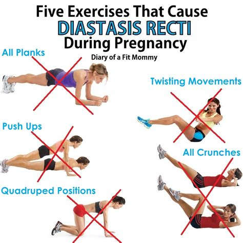 diary   fit mommy exercises   diastasis recti