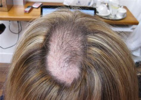 hair styles for trichotellamania trichotillomania pulling out hair