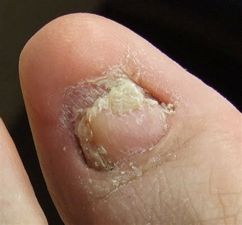 how to design toenails at home how to repair damaged toenails how you can do it at home
