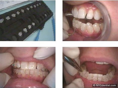 clear braces invisible braces and faster braces ny