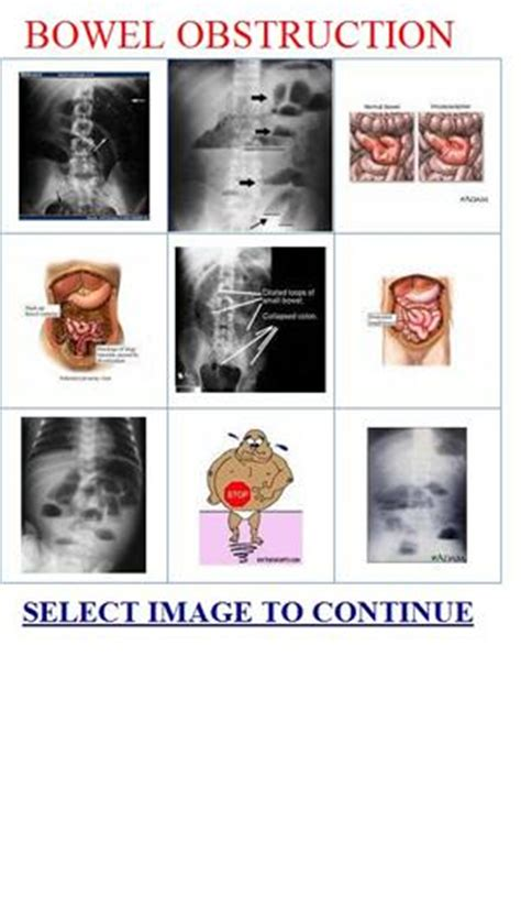 Stool Blockage by Signs Of A Blocked Colon Pictures To Pin On