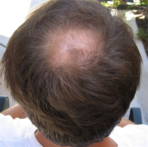 hair thinning how to prevent thinning hair vasseur