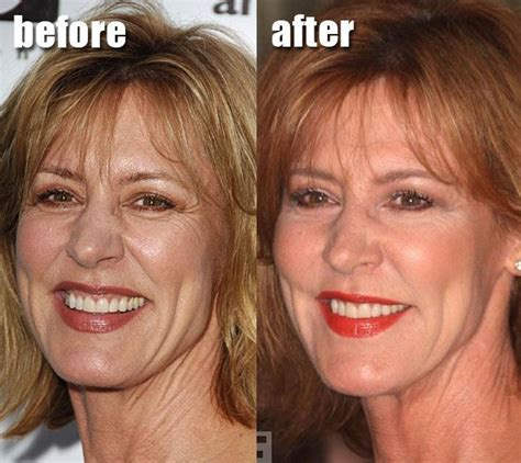 Next Facelift For Your Teeth 2 by Christine Lahti Plastic Surgery Lift Before And After